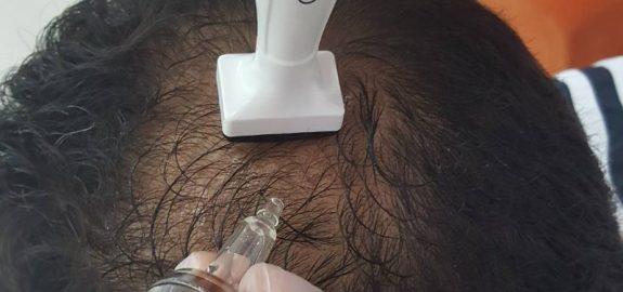 Saçın Yeniden Restore Edilmesi
