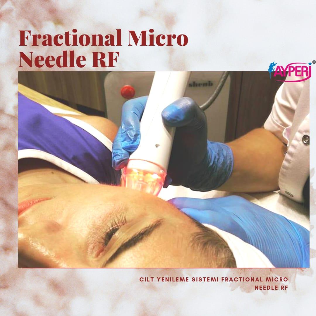 Fractional Micro Needle RF
