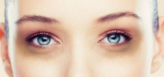 Neden göz altı morlukları oluşur?