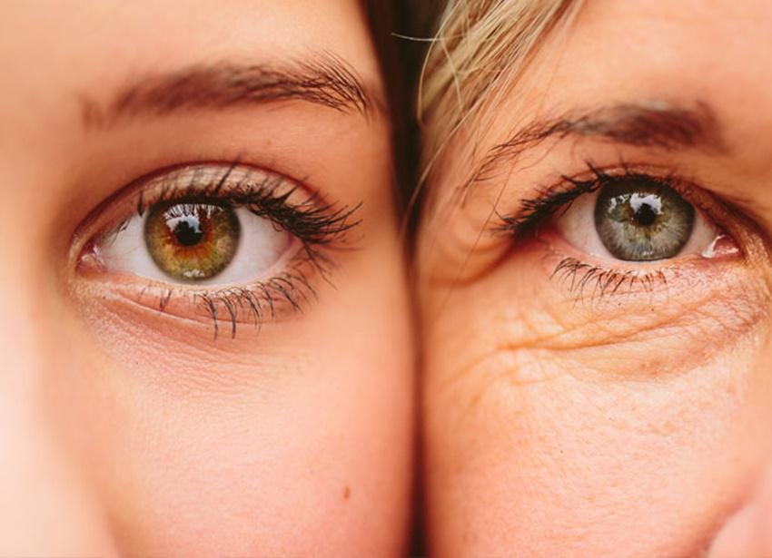 Göz çevresi neden kurur?